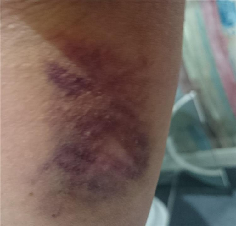 Close up of some deepening blue and red and black bruises