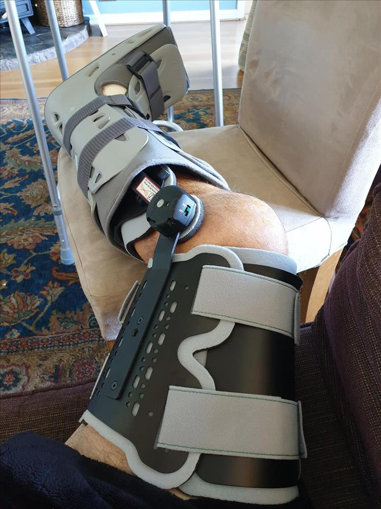 Pete's leg has a large metal brace fitted and a plastic boot to support the foot
